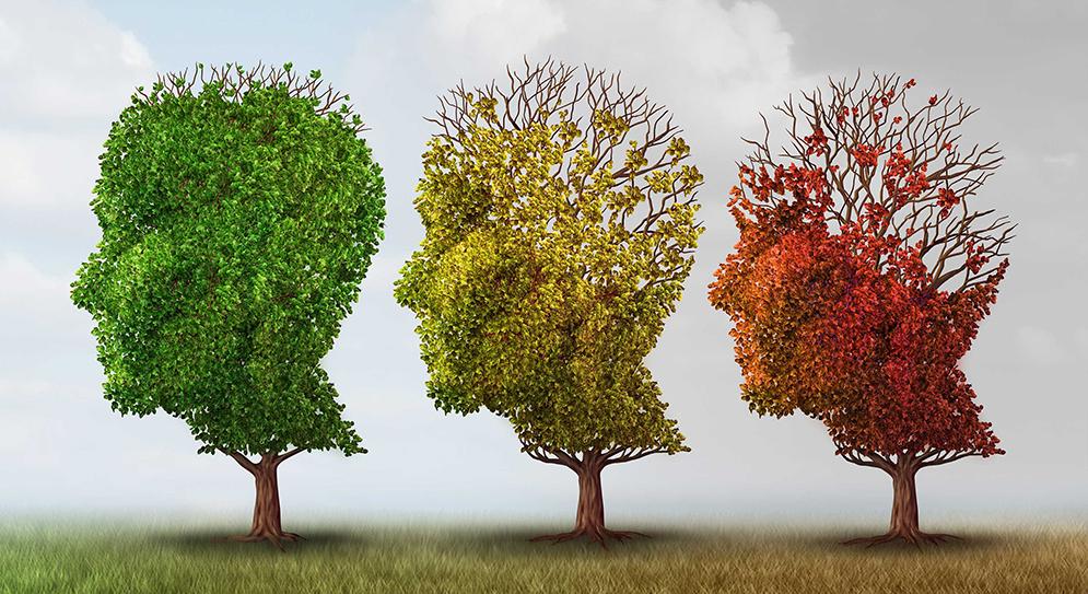 Alzheimer_biodimas-1.jpg